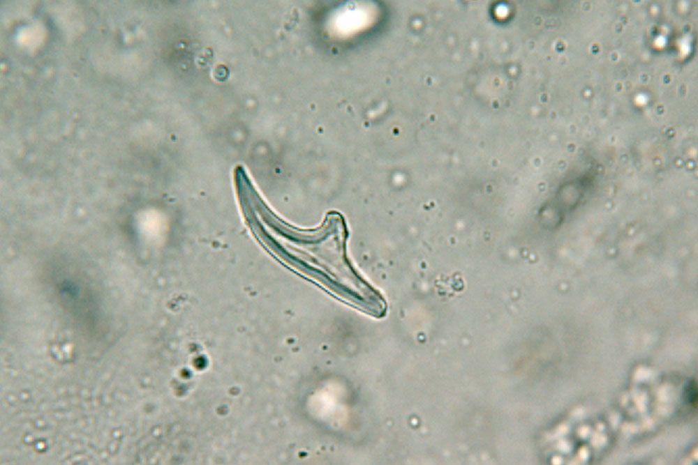 aszcariasis hookworm necatorosis és enterobiasis mi ez