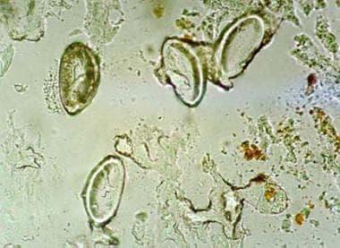 pinworm enterobiosis gyermekeknél)