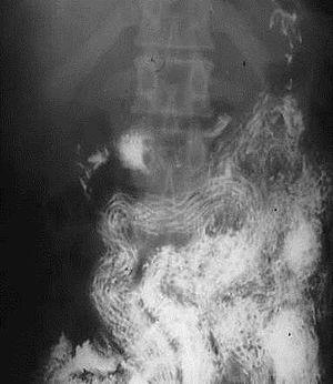 helminthiasis anaemia