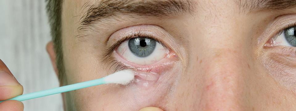 paraziták a bőr alatti kezelés