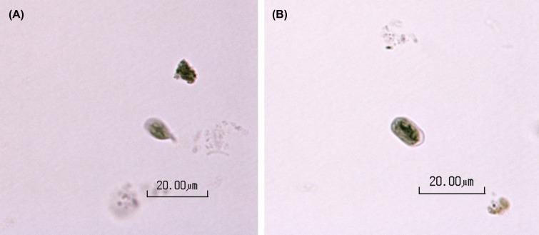giardia parasite size)