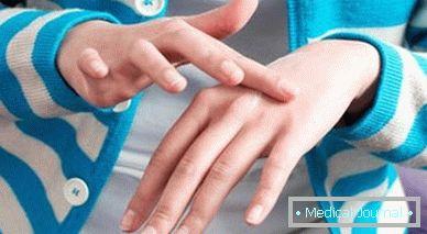 parazita jelei a testben, mint hogy kezeljék)