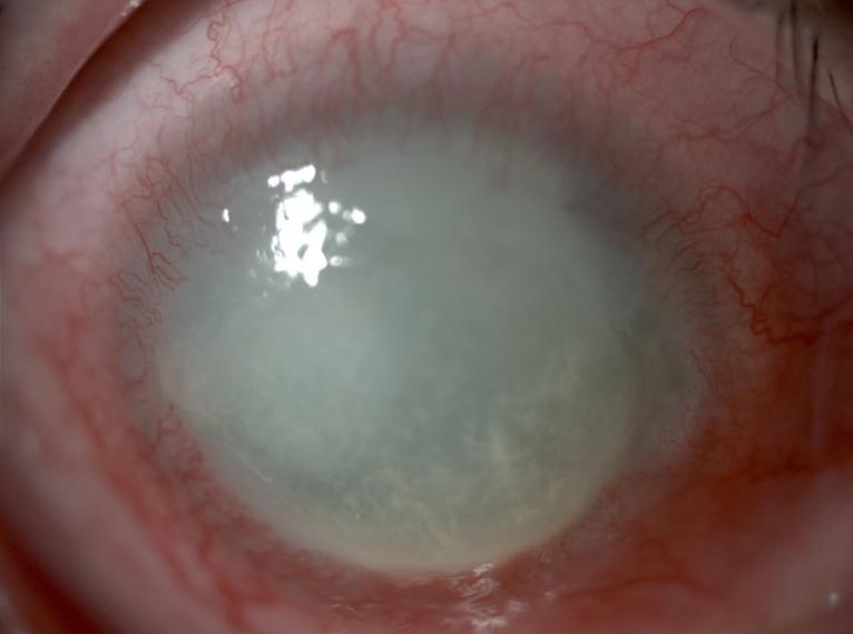 széles szalag anémia helminthiasis tabletta