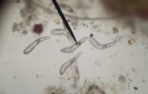 az emberi gyomorban található paraziták