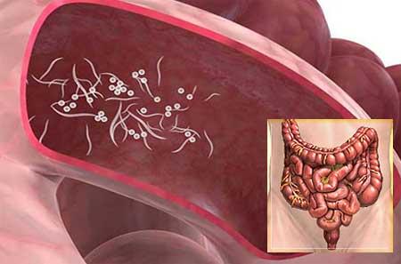 pinworms felnőtteknél tünetek)