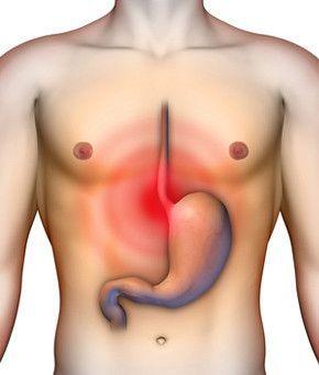a paraziták savas refluxot okoznak pinworm diéta