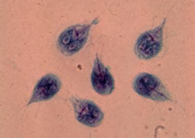 giardia enteritis)