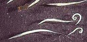 hasi fájdalom pinworms