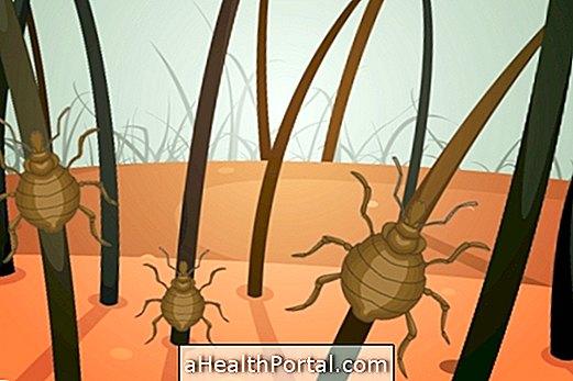 parazitaellenes kezelés)