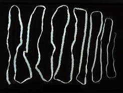 paraziták az emberi izmok kezelésében