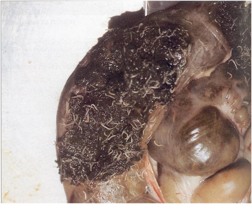 paraziták az emésztőrendszerben és kezelésük)