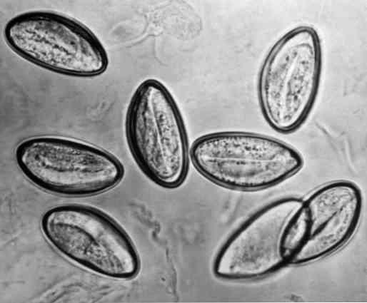 pinworms tojás fejlődése